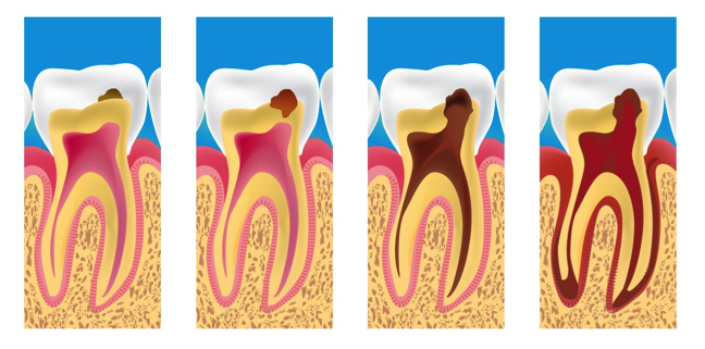 Tooth Decay | GHB Dental Care